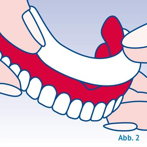 Unterkiefer-Prothese - Schritt 1 - Protefix Haft Polster | Protefix
